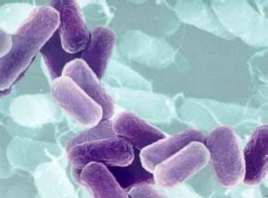 Infección por e. coli