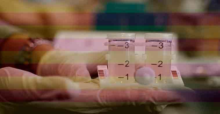 analizando bacteria legionella en el baroratorio